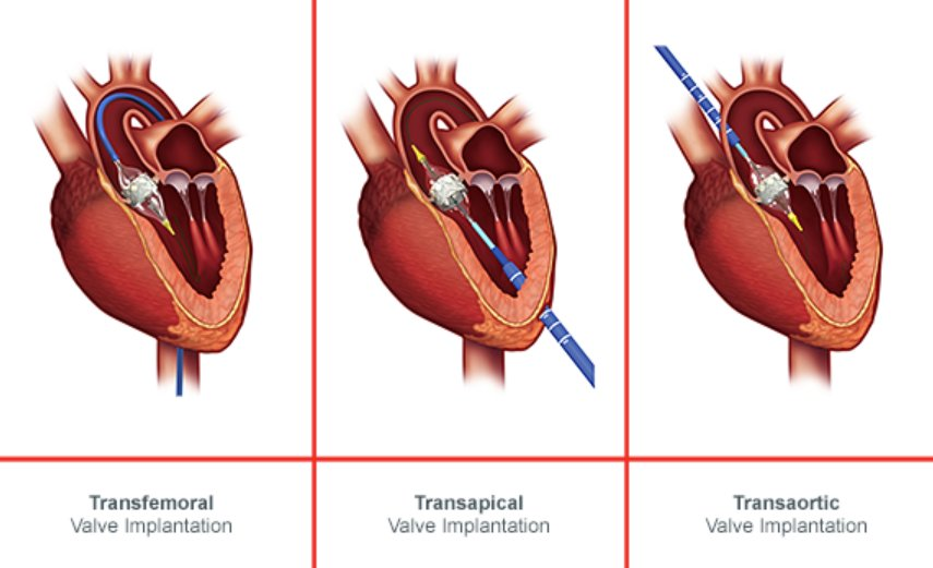 Thomas morris on twitter whoops i was looking for a diagram heart valve without open heart surgery a prosthetic valve is loaded on to a catheter and inserted via the blood vesselspicittert2kb6tugwc ccuart Choice Image