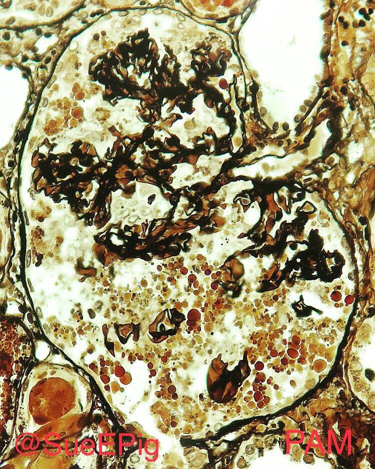 The p53 Tumor Suppressor
