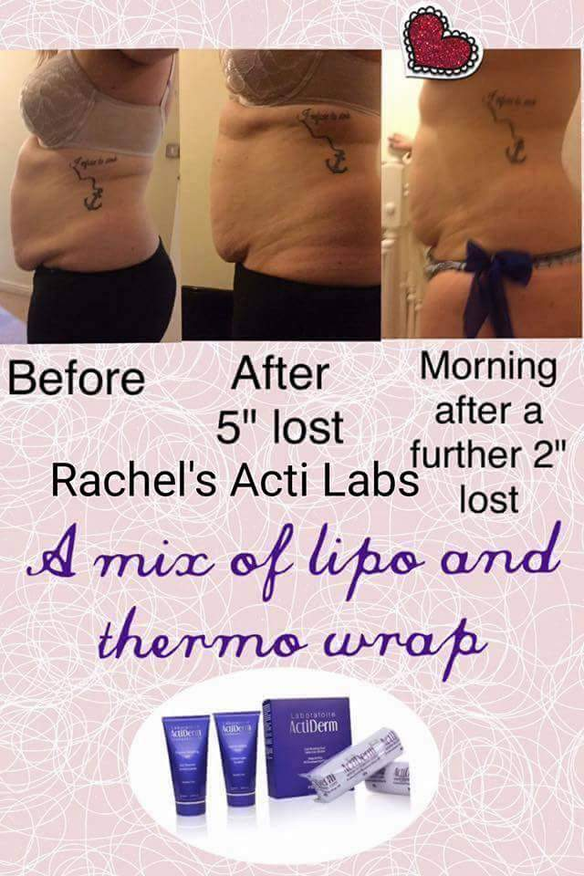Actiderm Inch Loss Wraps Bewertungen