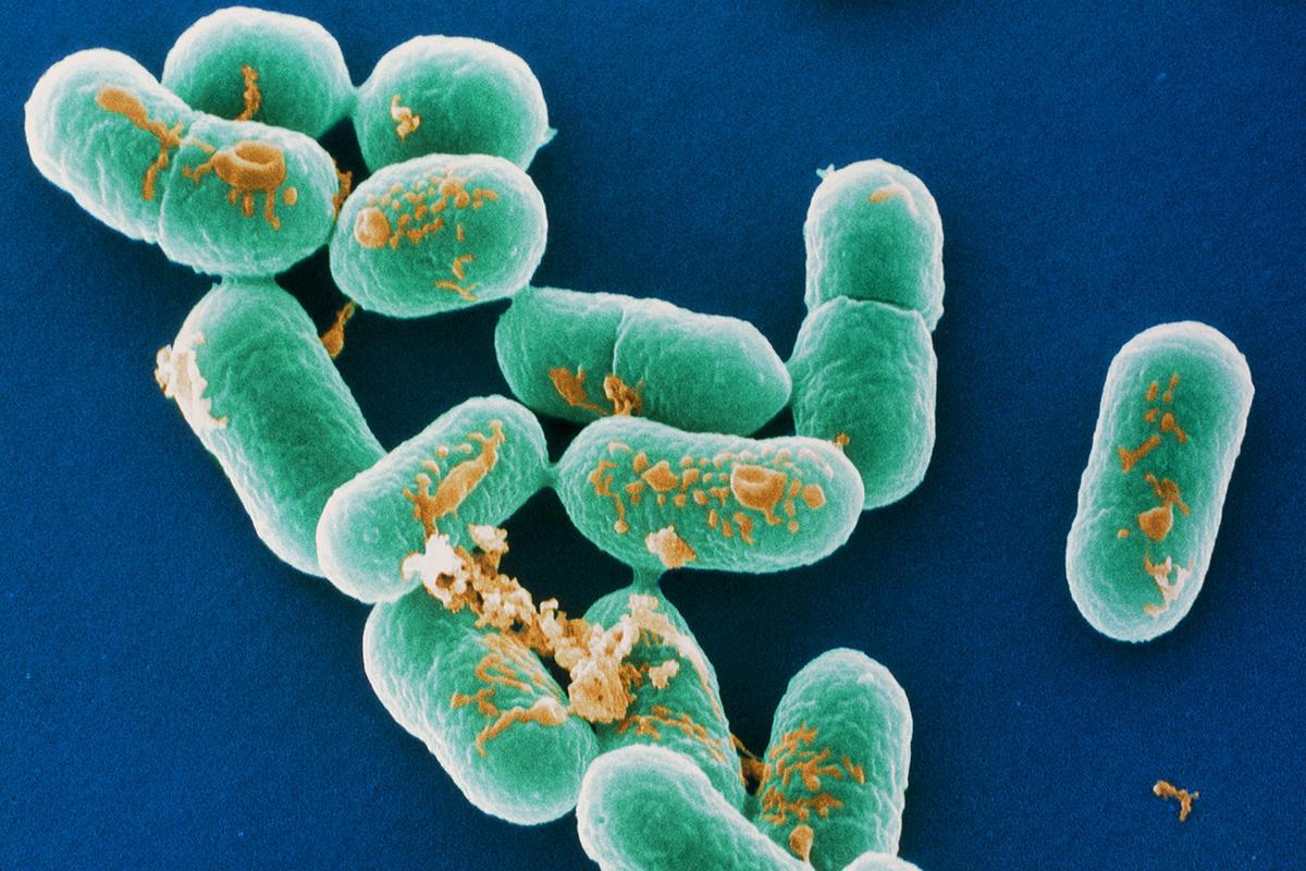 Source of world's biggest listeria outbreak still unknown https://t.co/AOJULhWDCT