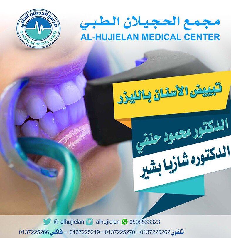 تبييض الأسنان بالليزر الدكتور محمود حنفي...