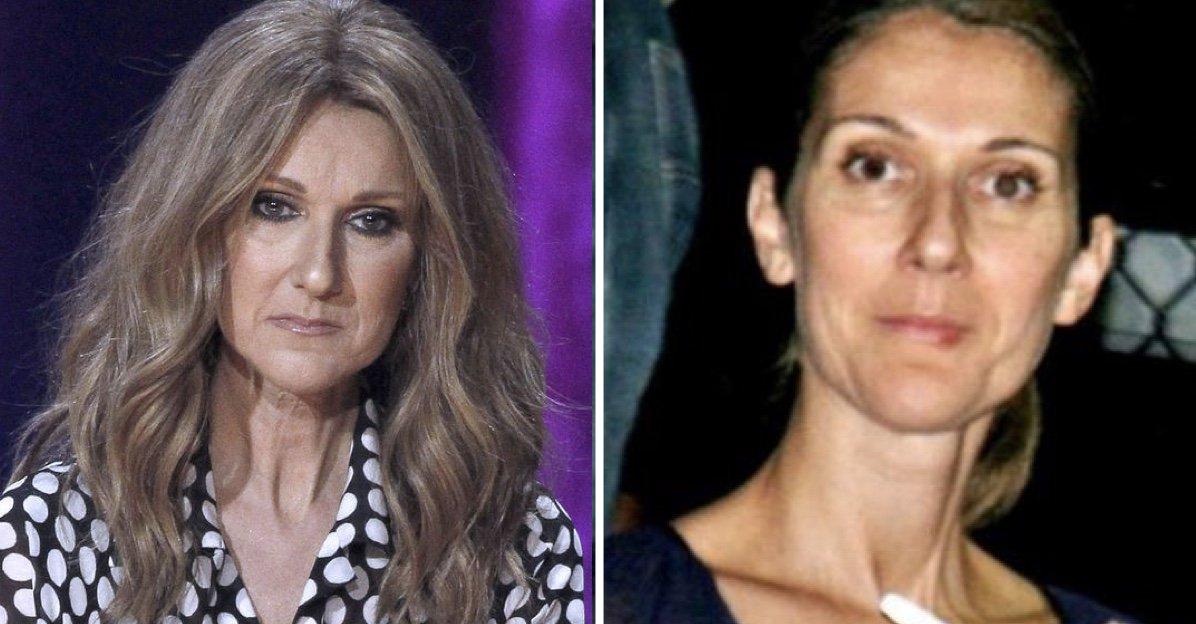 Celine Dion: Son état de Santé s'empire de plus en plus elle est très malade > https://t.co/5YHli1daJl https://t.co/0sXKaNDRB5