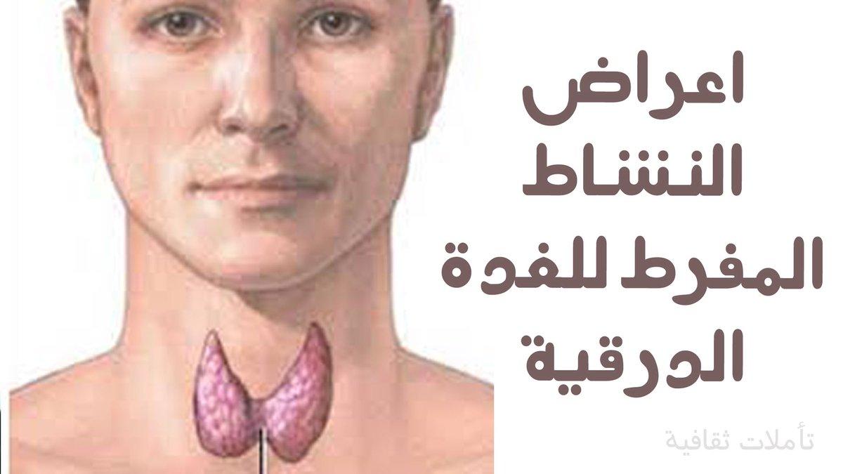 Dr Khalid Alghamdi Pa Twitter شرحت في تغريدات سابقة متى يجب صرف علاج الثيروكسين في حالة كسل الغدة البسيط ا ي يكون الهرمون المحفز للغدة الدرقية مرتفع وهرمونات الغدة الدرقية ضمن المعدل الطبيعي ومنها