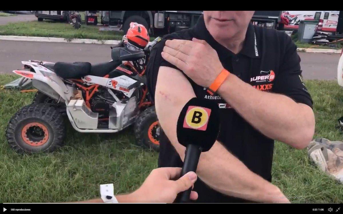 Kees Koolen muestra sus heridas