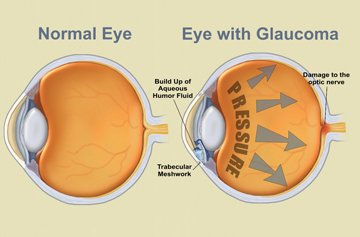In support of #glaucomaawarenessmonth check out this useful infographic about #glaucoma  For more info check out this overview -  http://www. crispeopticians.co.uk/eyecare/glauco ma?next=&amp;id=14 &nbsp; …   #healthcare #eyecare #info #opticians #glasses #fashion #designer #January #human #eyes #eye<br>http://pic.twitter.com/Wb2ZoNizd5