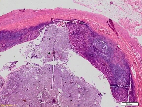 enterobius vermicularis nhs)