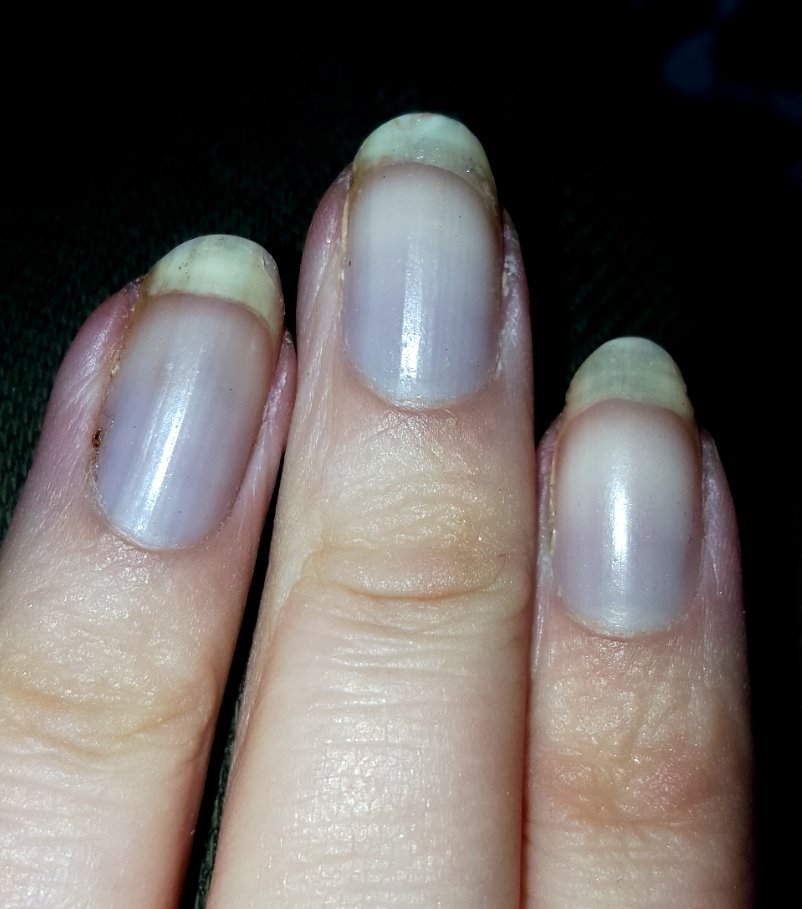 It Starts With Blue Finger Nails Then White Fingers Searing Agony Lupus Raynauds Raynauds4lyfe Lupusorg Mueller224 Autoimmune