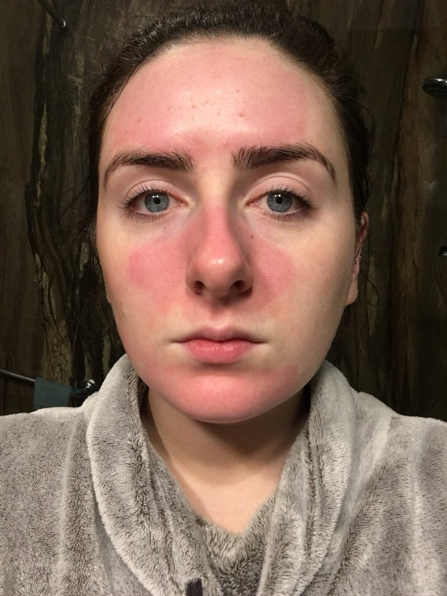 Face burned my How to