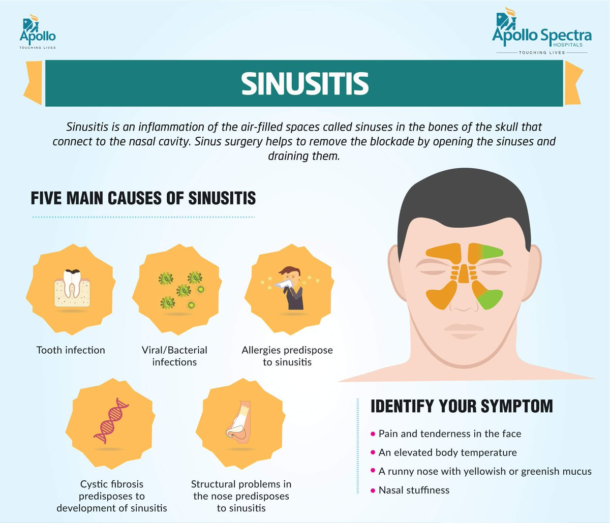 sinus-infection-causing-facial-paralysis-tamil-fat-women-sex-picture