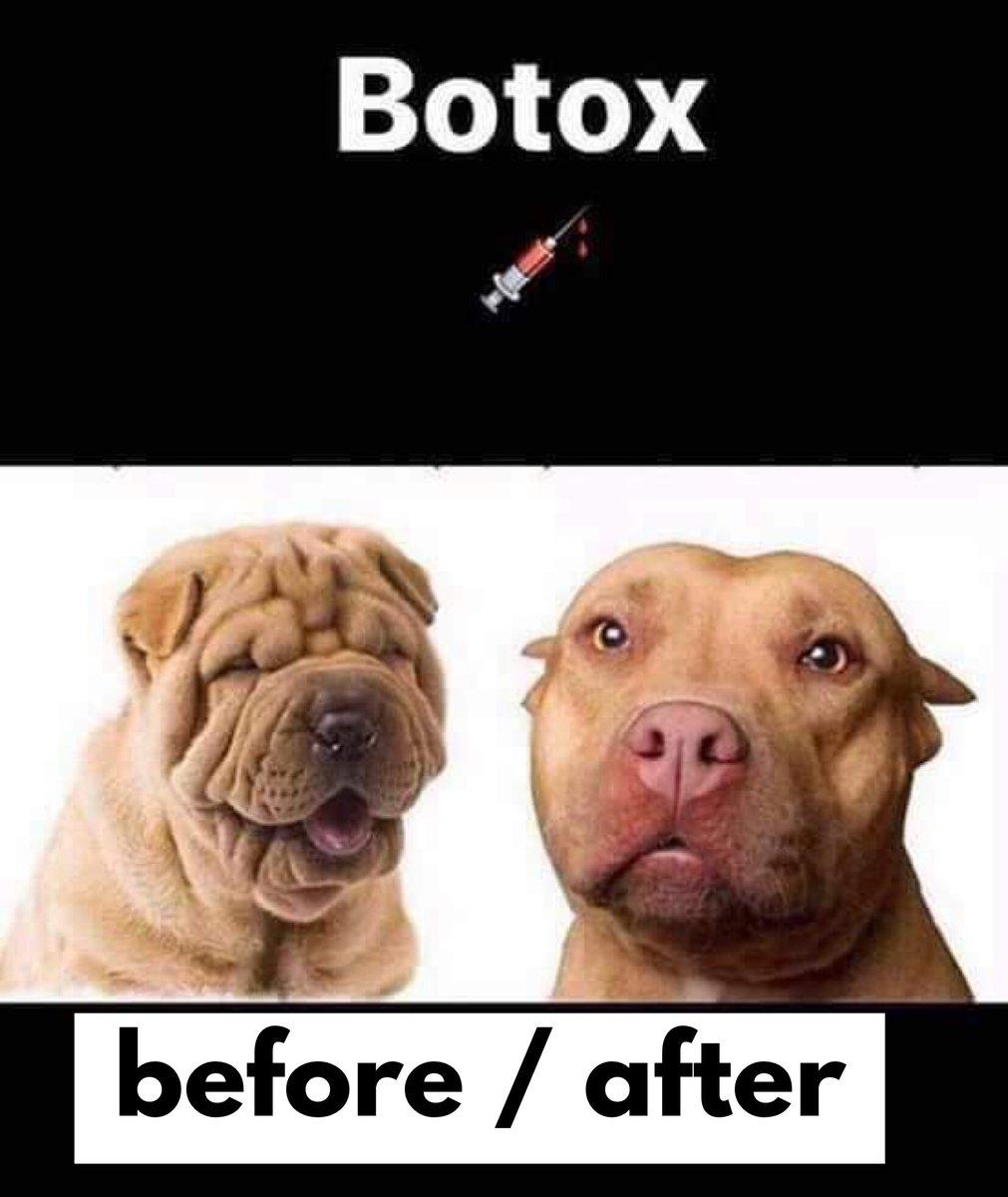 Botox  #botox #botoxday #sinarrugas #antiage #humor #memedeldíapic.twitter.com/49HVd332rv
