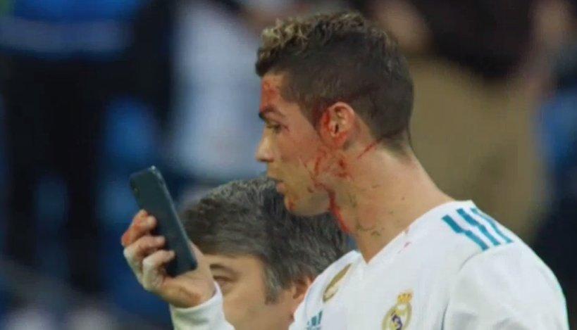شاهد | رونالدو يستخدم الهاتف لمشاهدة إصابته أمام ديبورتيفو لاكرونيا