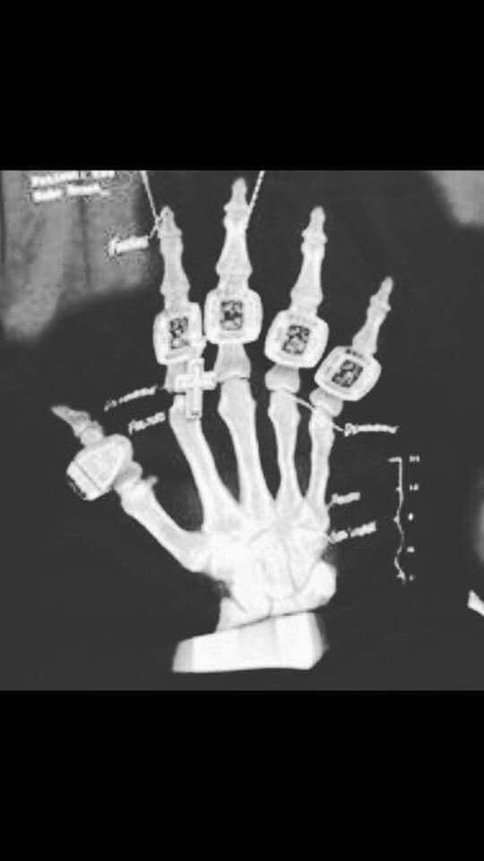 Ha ha. Love this. It's an X-ray of Tom Brady's right hand