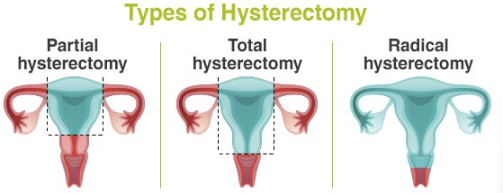 Eva Martin Md On Twitter Removing Ovaries During Hysterectomy For Benign Indications Increases Risk Of Death Heart Disease Lung Cancer But Decreases Risk Of Breast Ovarian Cancer Https T Co 8iqztm9lfq Gyn Surgery Https T Co Hcbnskag6x