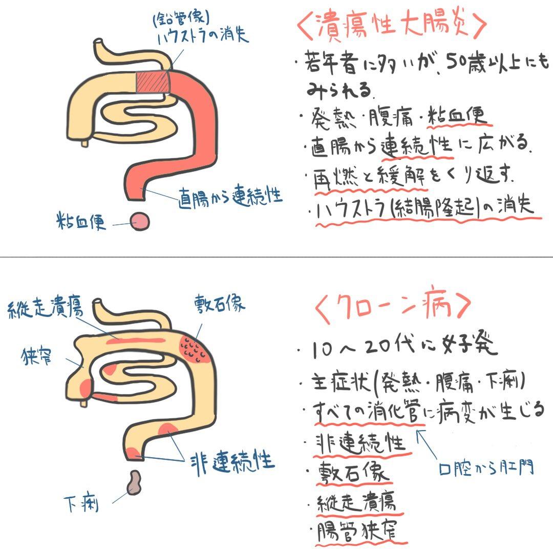 潰瘍 性 大腸 炎 看護