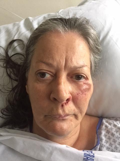 Si vous reconnaissez cette femme, il faut contacter les gendarmes de #HauteSavoie. Elle a été retrouvée nue, blessée et désorientée à #Neydens  https://t.co/Hd8TOc9G8w
