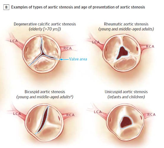 Aortic Stenosis In Children: Congenital Aortic Stenosis Guidelines