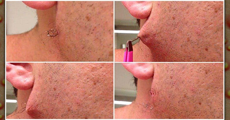 Ingrown Hair From Plucking | Ingrown Hair