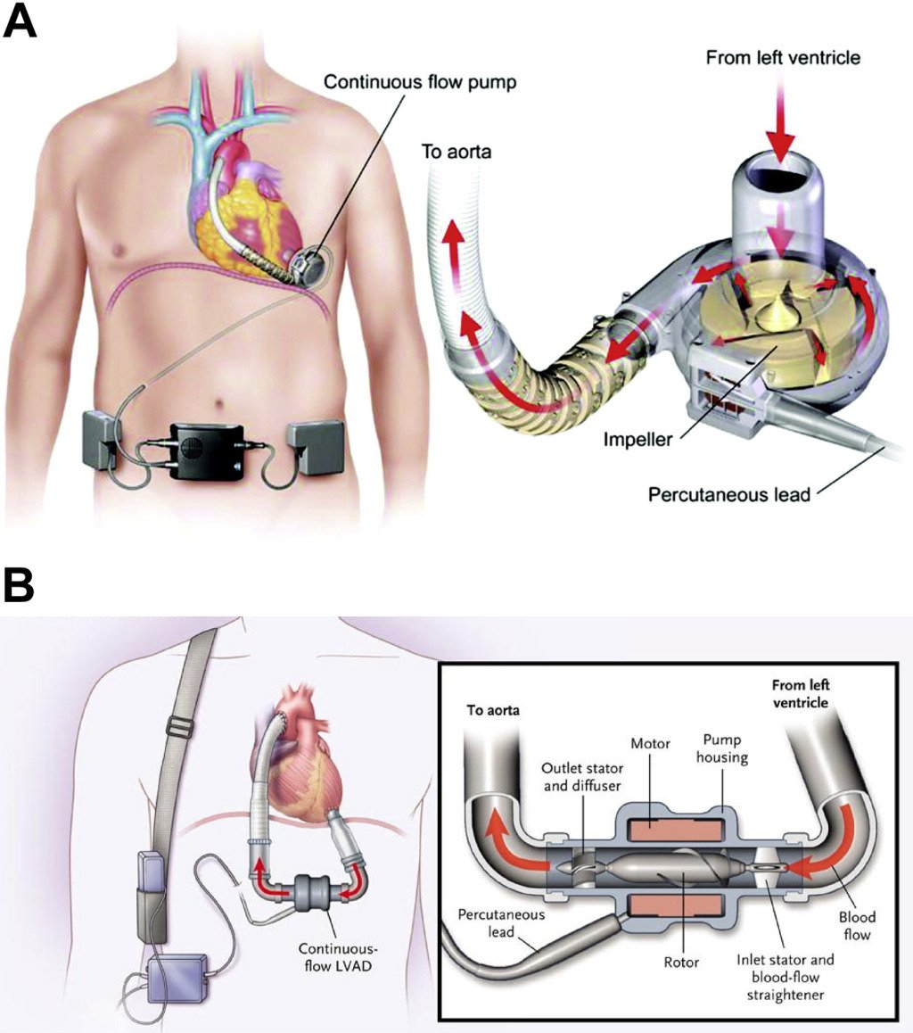 """AJKD ar Twitter """"An overview of Left Ventricular Assist Devices ..."""