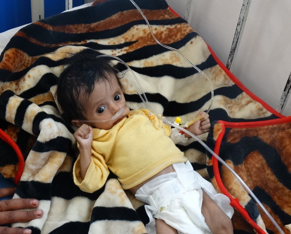Malnutrition, skin diseases and more are speading rapidly in Sa&#39;ada. This&#39;s due to absence of health care caused by US-Saudi blockade, airstrikes, and artillery Saada, northern Yemen, after 4 years of suffocating blockade YemenForgottenWar <br>http://pic.twitter.com/jtRHJ8wvdh