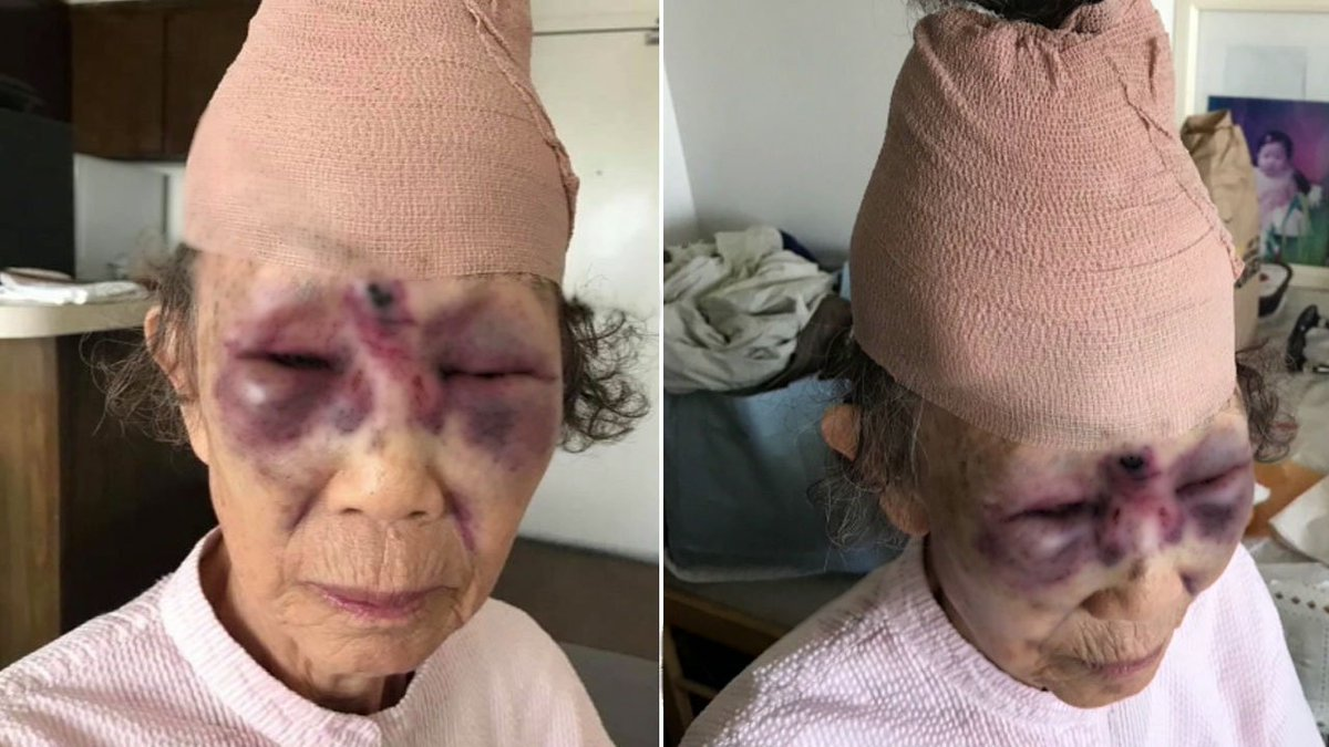Manhunt underway for attacker of 86-year-old grandmother who was beaten in broad daylight on busy street in Koreatown https://t.co/wuJfZ4yoEZ