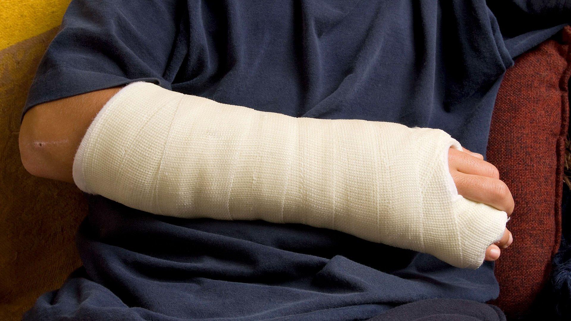 захотелось картинки про перелом руки во-вторых