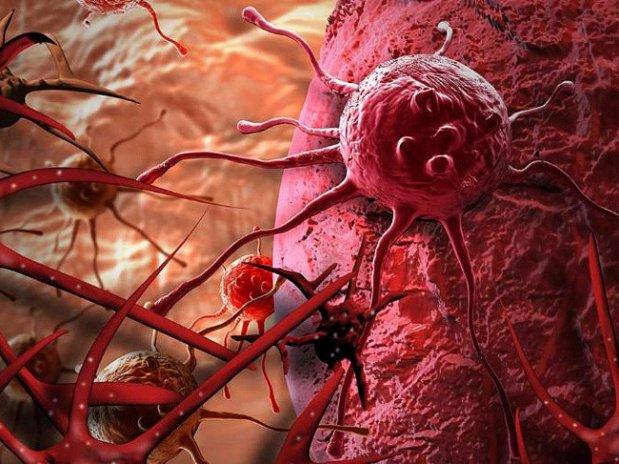 Победить рак простаты