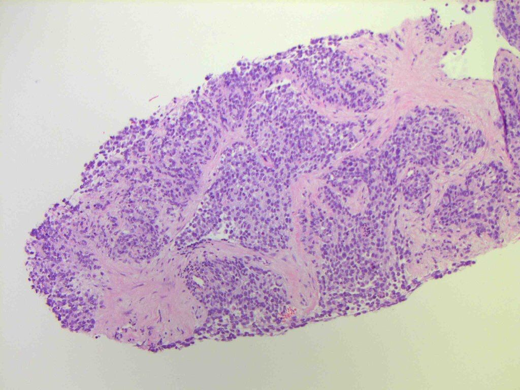 rhabdomyosarcoma essay Read about rhabdomyolysis, the rapid destruction of skeletal muscle some causes include medications (statins), extreme exercise, drugs or alcohol, electrolyte.