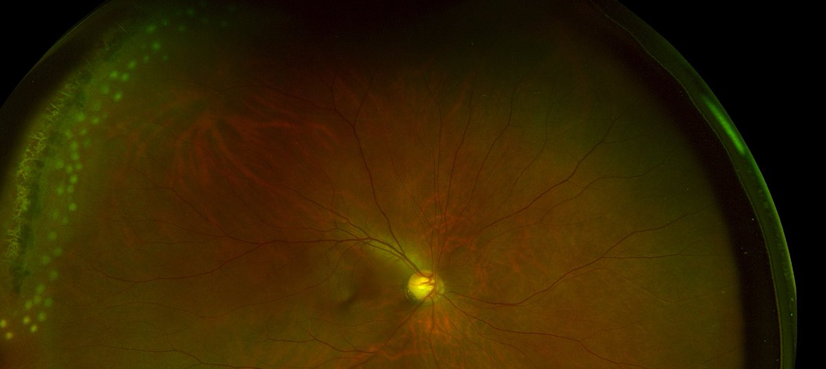 51 Yo AM With Lattice Degeneration White Without Pressure And Multiple Retinal Holes Diagnosed Type 2 Diabetes Pictured Here Is Before After