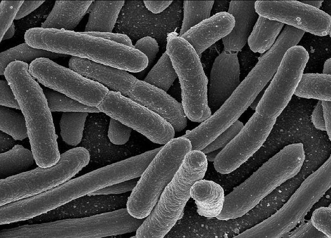 RT by @dietpatch RT @RatioScientiae: Let's Talk Sh*t! #microbiome #obesity #brain #intestine https://t.co/w5MnHUBML9 https://t.co/6eQlNbkRPx