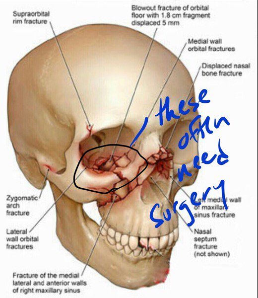 List Of Synonyms And Antonyms Of The Word Orbital Bone