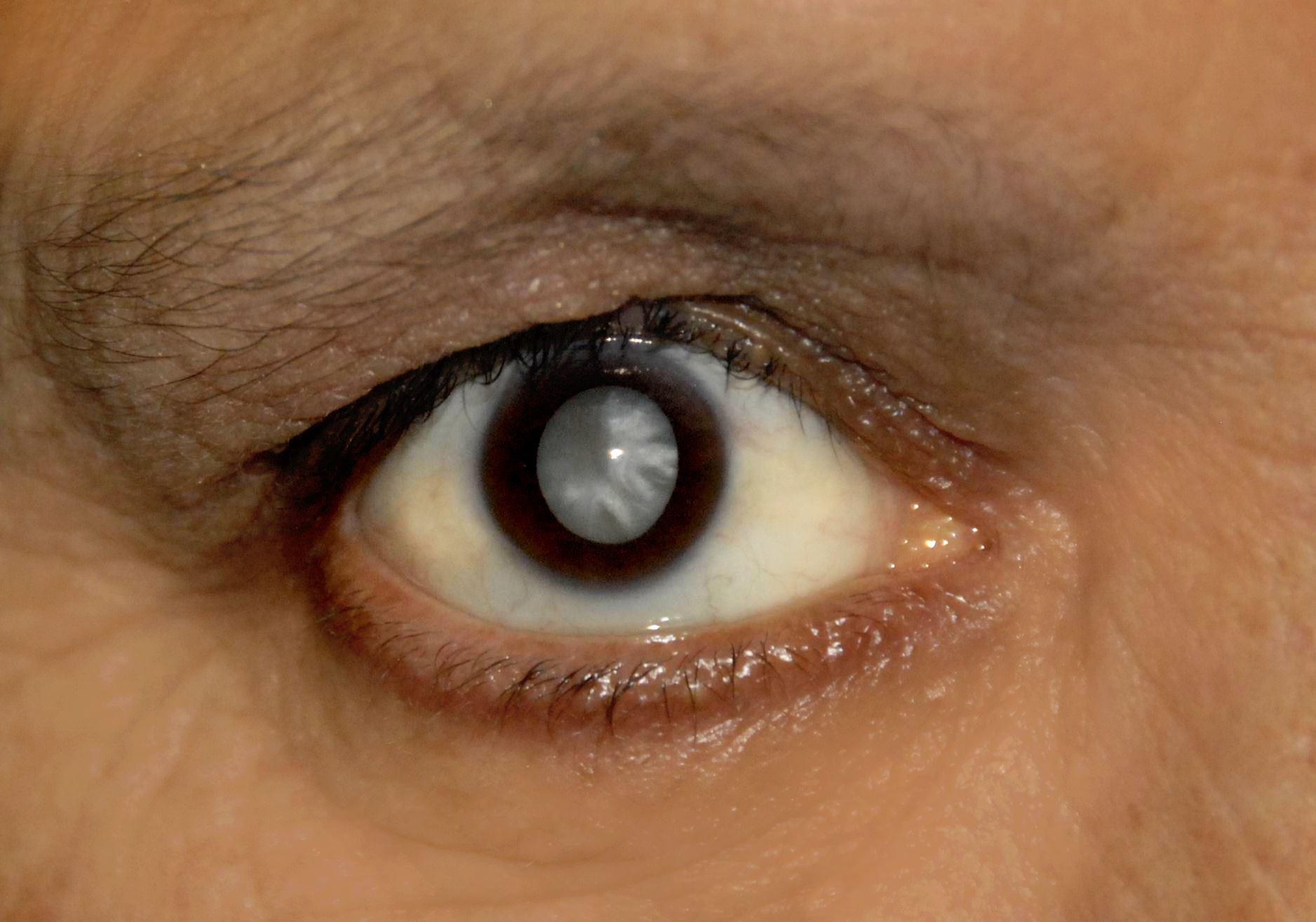 пол картинка мутный глаз группу можно
