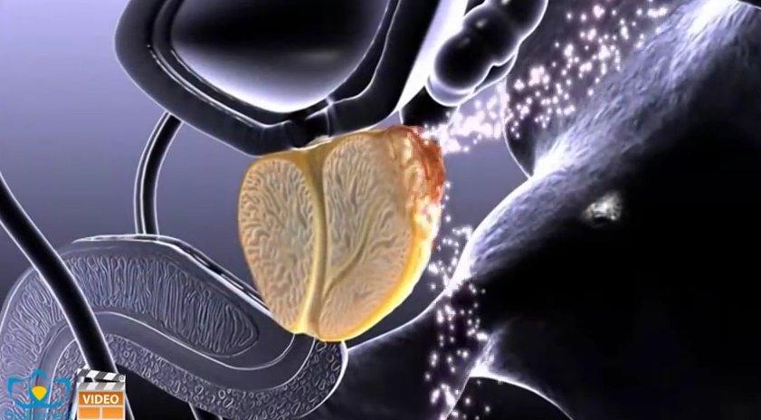 tumore prostata san raffaele