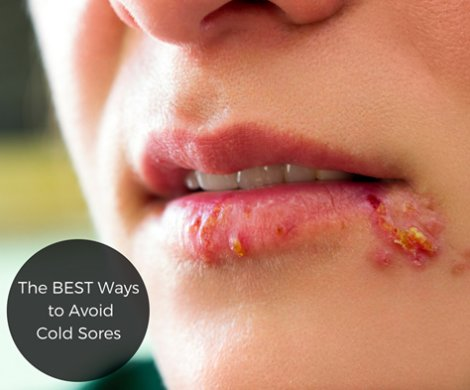 how to avoid getting cold sores