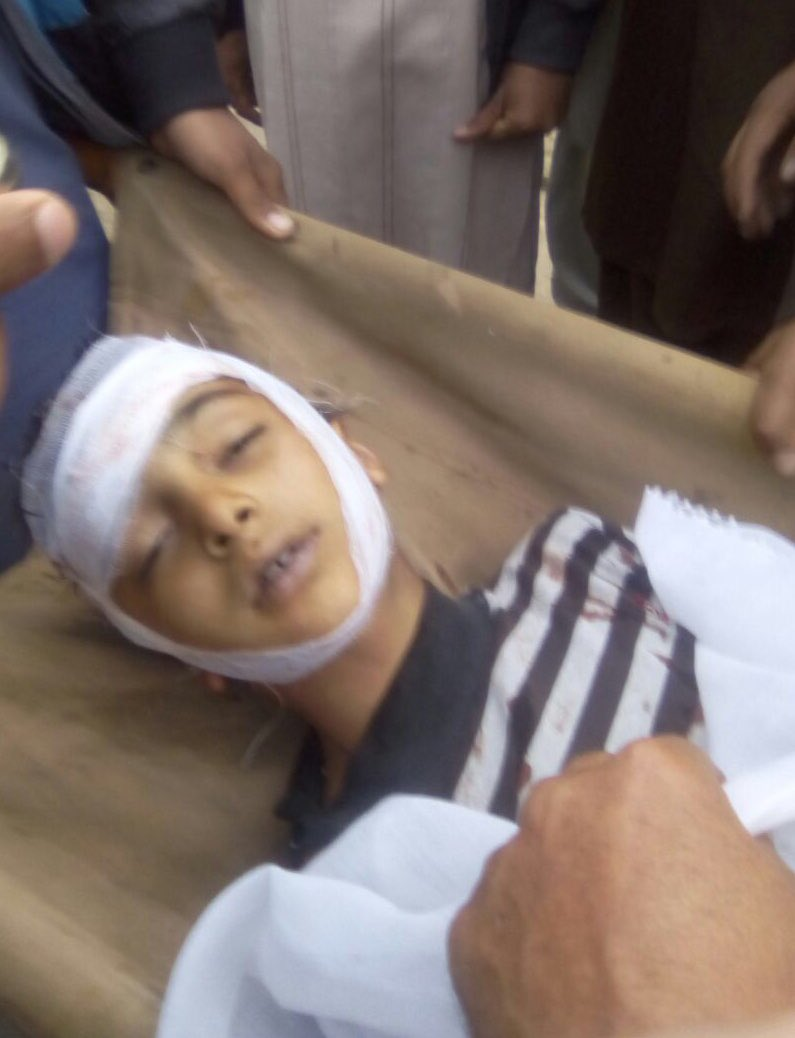 Indian brutality takes life of an eight year old boy Ayan of Jajot village along LOC. Use of Pellet guns in Indian Occupied Kashmir (IOK) and blatant targeting of innocent unarmed civilians across LOC exposes true Indian face. #IndianTerrorism