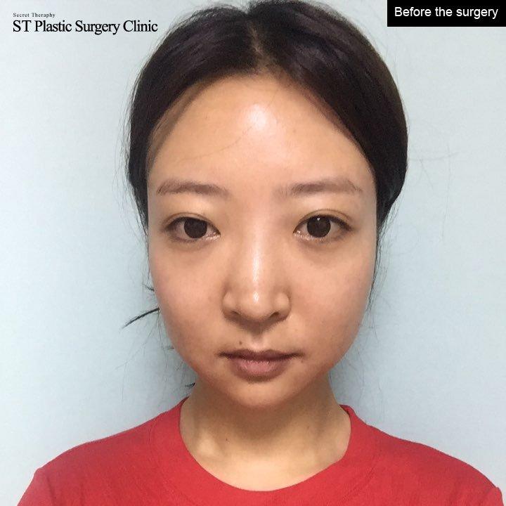 ST Plastic Surgery on Twitter: