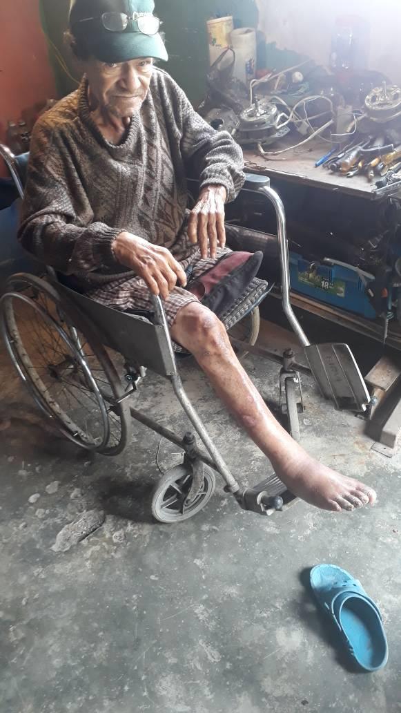 #ServicioPúblico Para señor en grave estado de pobreza. Diabético con ACV y discapacidad en la pierna. Omeprazol, Meformina, glibenciamida, INSULINA MPH. 04164294002 https://t.co/EQxKPWnWNM