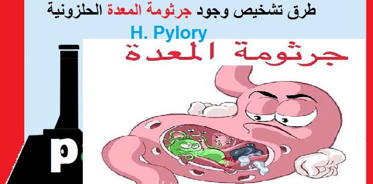 Dr Khalid Alghamdi در توییتر تحليل جرثومة المعدة عن طريق اختبار التنفس او البراز أفضل من تحليل الدم