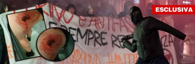 #Torino, bombe antagoniste con i chiodi: agente trafitto alla gamba https://t.co/zRTCHs3kjr