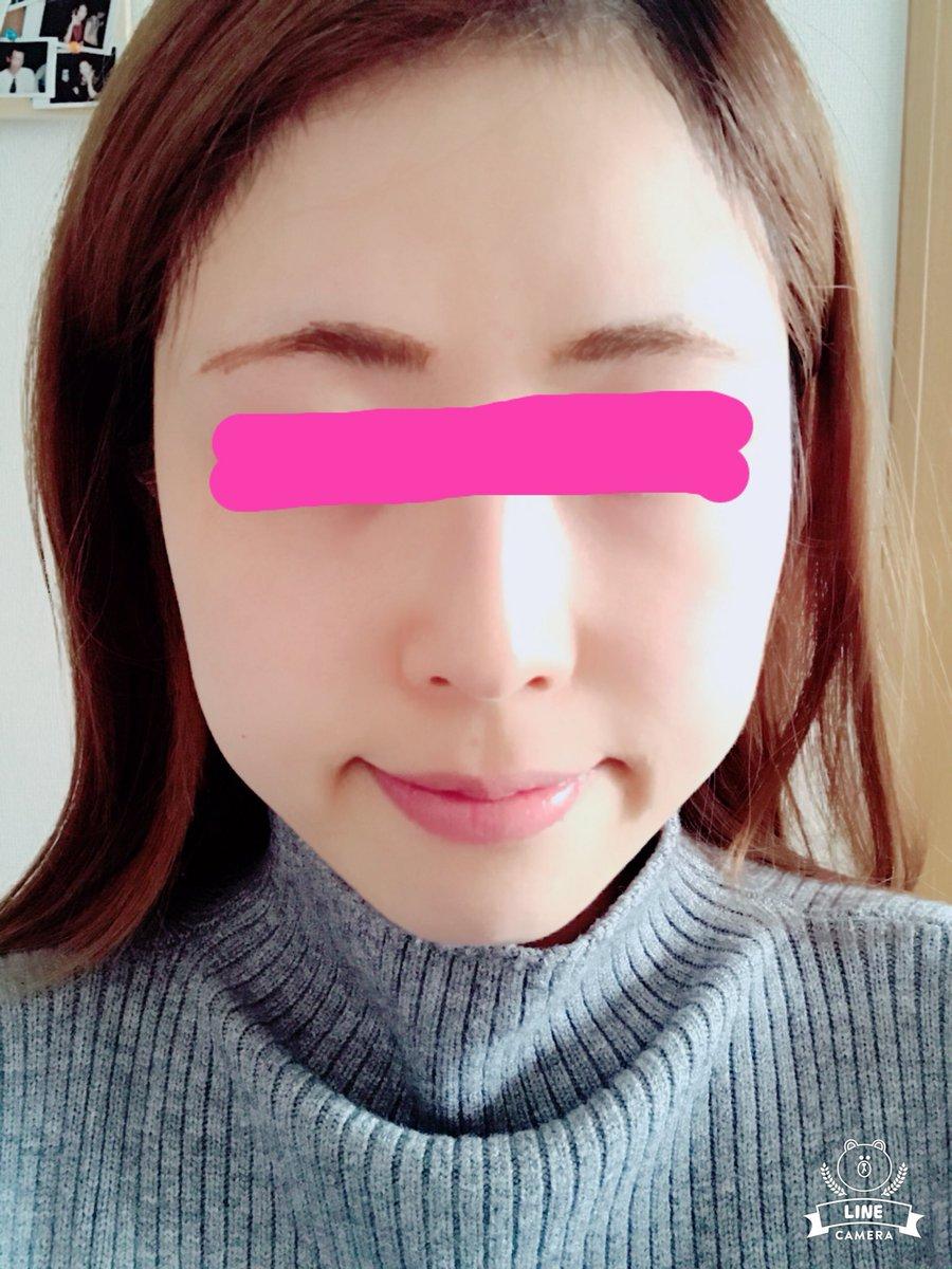 美容 外科 札幌 品川 クリニック一覧 品川スキンクリニック【公式】