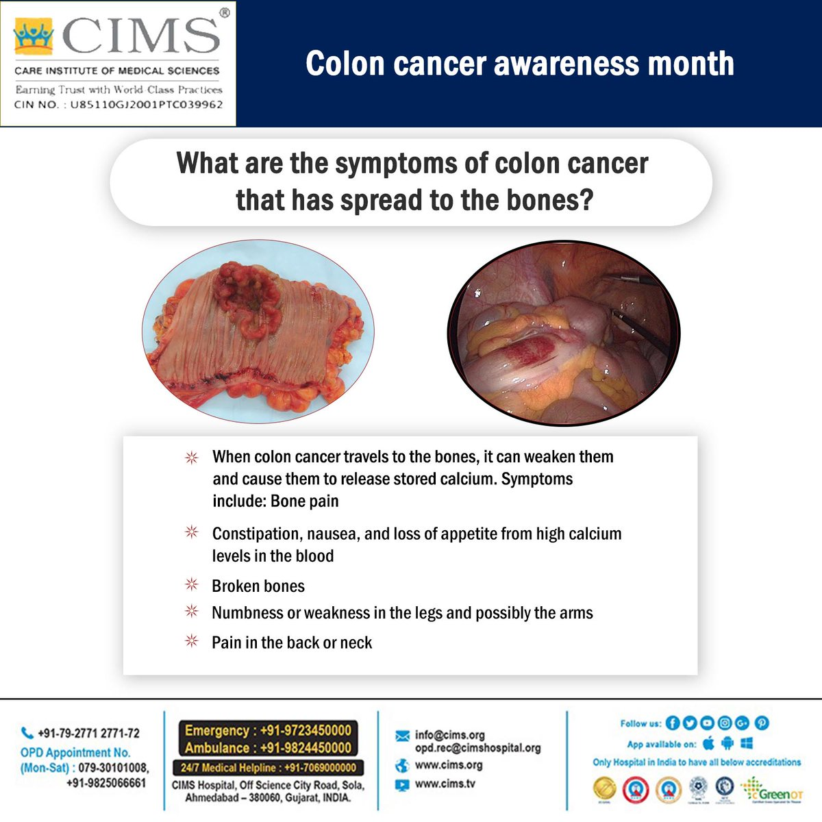 Cims Cancer Center On Twitter Colon Cancer Awareness Month Awareness Cancer Symptoms Colon Cancer Bone Pain Constipation Calcium Numbness Cimscancer Cims Cimshospital Https T Co Mclvjscrwn