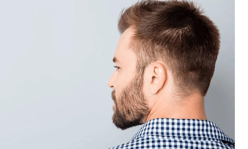 Geheimratsecken herren frisuren Frisuren mit