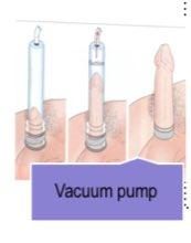 ventolin salbutamol generic