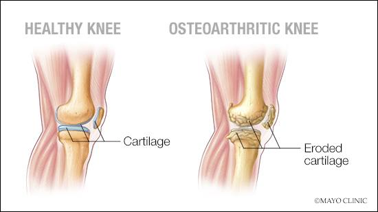 Mayo clinic on twitter questions about managing arthritis pain mayo clinic on twitter questions about managing arthritis pain ericmattesonmd rheumatologist replies in this mayoclinicqanda ccuart Choice Image