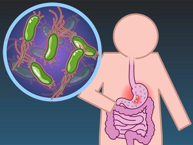 Простатит хеликобактер пилори средство для лечения простатита и импотенции