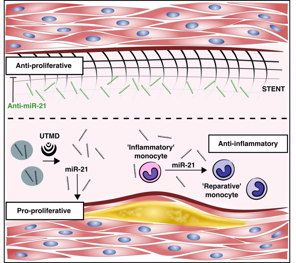 @MolTherapy Editorial: MicroRNA-21 and the Vulnerability of Atherosclerotic Plaques https://t.co/BT9SKmYJQY and accompanying paper https://t.co/76x7i5YuFK