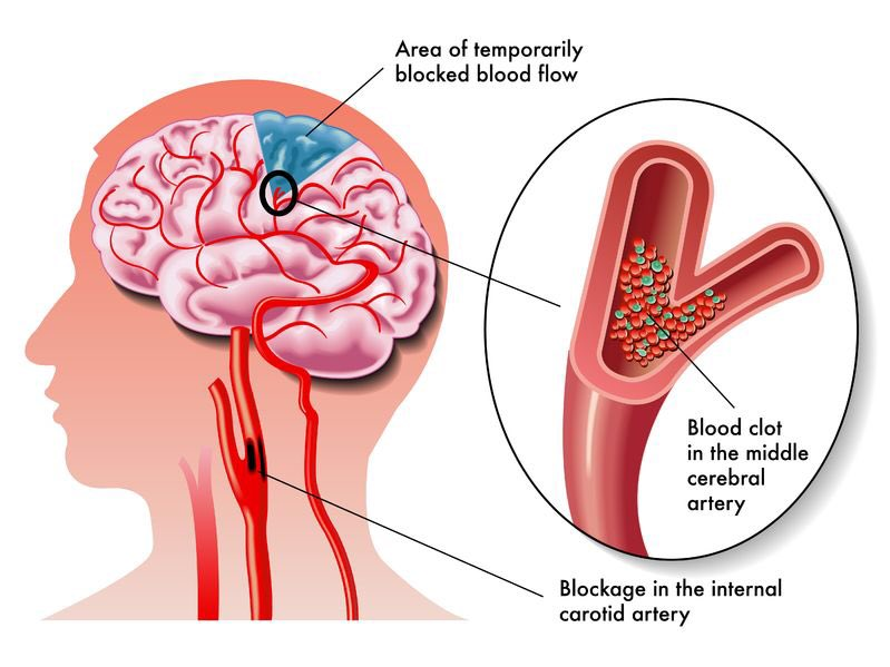 reem on twitter cerebrovascular accident cva is the medical term for a stroke a stroke is when blood flow to a part of