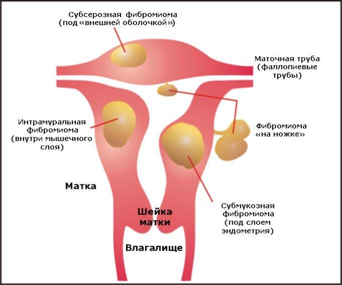 диета при фиброме матки