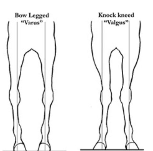 knock behind knee Desperate for some knock knee correction methods here are 12 effective ways of correcting knock knee, including exercises, enough vitamin intake, surgery.