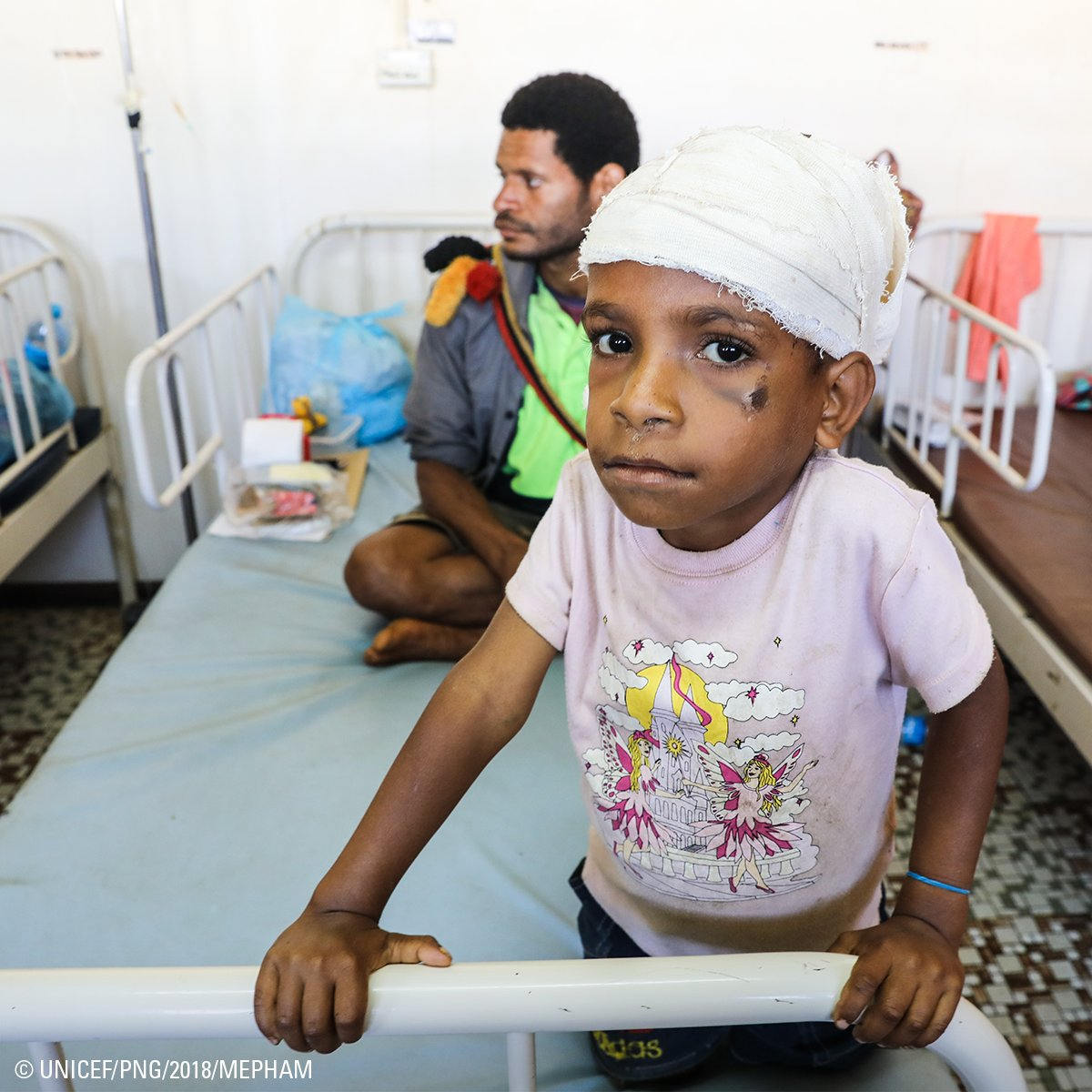 """""""We ran out of the house when the #earthquake came. It was dark, we couldn't see what was happening. The rocks from a landslide hit him on the head but he is very lucky to be alive."""" - Kevox remembers the moment when massive #PNG earthquake injured 5-year-old Douglas. #UNICEF"""