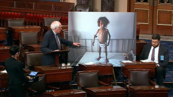 Sanders says it's a photo of a child from Yemen.